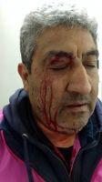 En Rawson, un remisero se enojó con el playero de una estación de servicio y lo atacó con una llave para ruedas